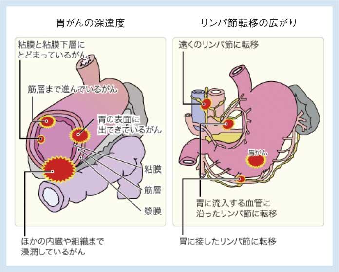 胃がんの深達度、リンパ節転移の広がり